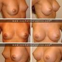 wish- nice perky natural breast C-cup?